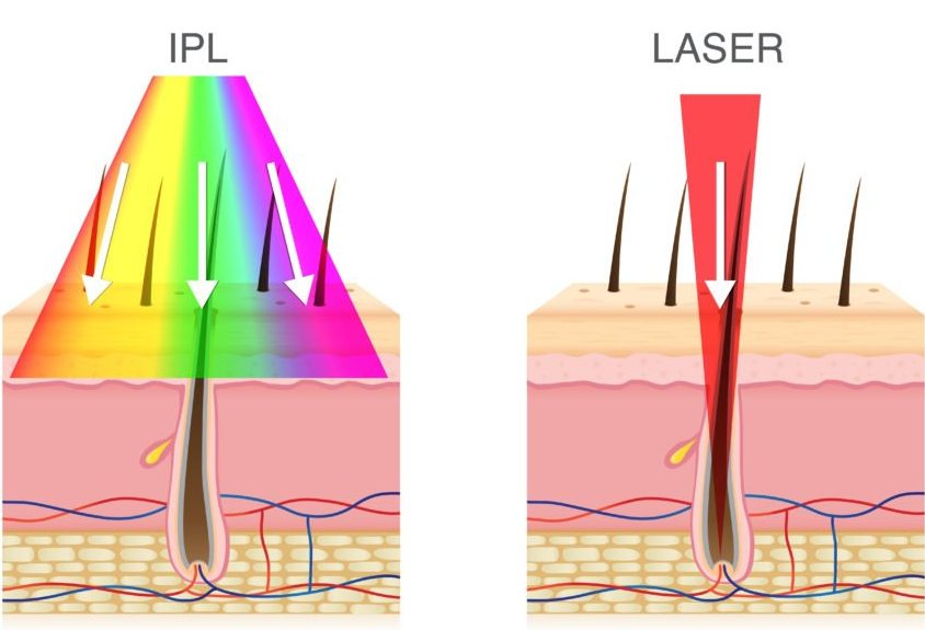 IPL vs. laser technologie