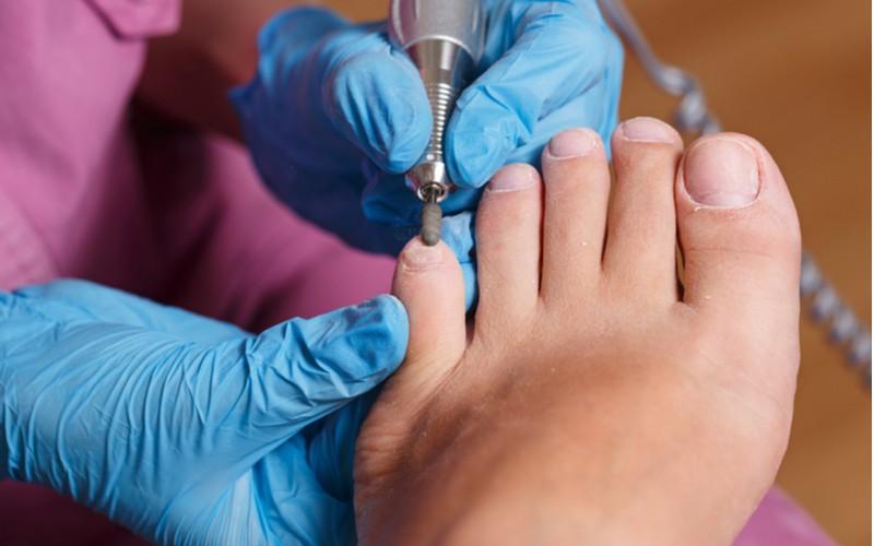 broušení nehtů na noze s elektrickou bruskou